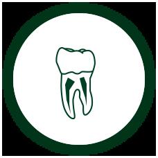 一般歯科根管治療