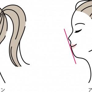馬車道アイランドタワー歯科|ブログ|口呼吸と歯の関係について|アデノイド顔貌.jpg