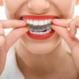馬車道アイランドタワー歯科|ブログ|口の中にできたコブ!?骨隆起とナイトガード|マウスピース