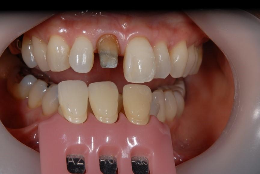 【症例】黒ずんだ歯茎の改善を図った審美修復
