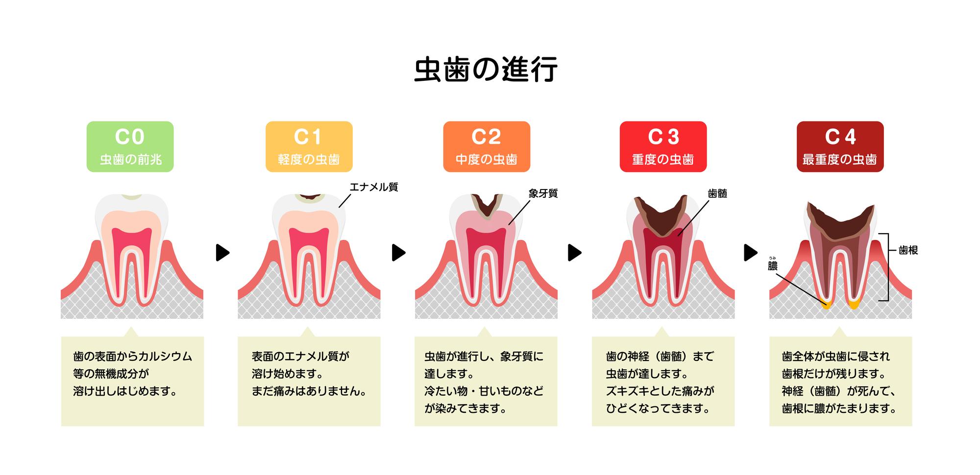 馬車道の歯医者 馬車道アイランドタワー歯科|ブログ|虫歯の早期発見で有効な治療コンポジットレジン修復について|虫歯の進行段階の図