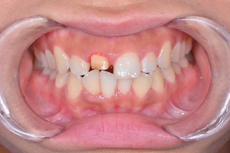 【症例】神経のない前歯の変色に対するジルコニアセラミックでの審美修復と破折リスクへの対応