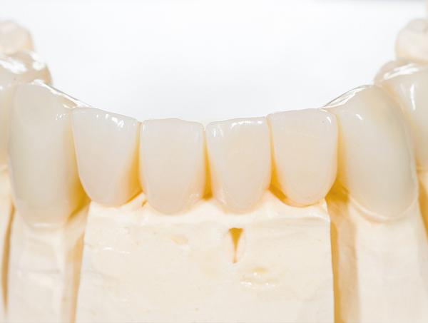 馬車道アイランドタワー歯科 院長ブログ 歯の詰め物・被せ物を徹底解説! 歯の詰め物の画像2