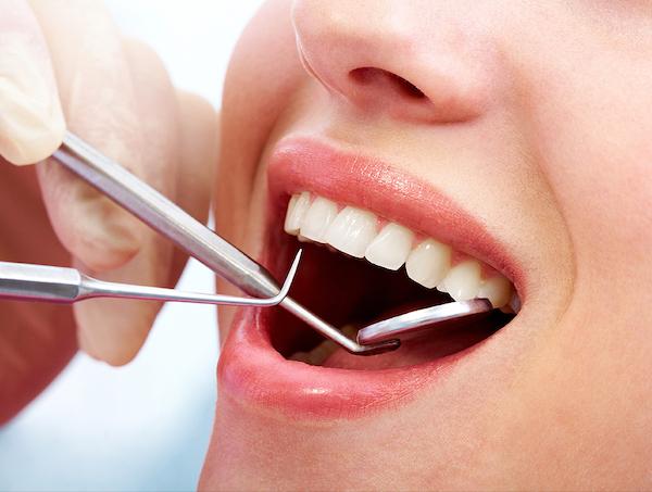 馬車道アイランドタワー歯科 院長ブログ 歯の詰め物・被せ物を徹底解説! 白い歯を見せる女性の画像