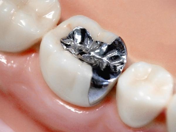 馬車道アイランドタワー歯科 院長ブログ 歯の詰め物・被せ物を徹底解説! 金属の詰め物の画像