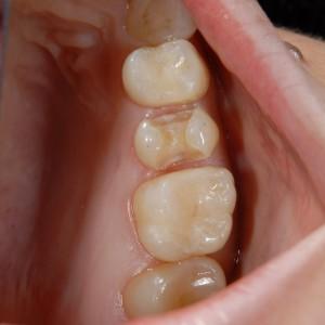 馬車道アイランドタワー歯科|症例|適合不良の金属をジルコニアとコンポジットレジンで修復|コンポジットレジン修復後の写真