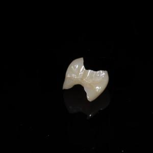 馬車道アイランドタワー歯科|症例|適合不良の金属をジルコニアとコンポジットレジンで修復|ジルコニアインレー