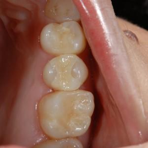馬車道アイランドタワー歯科|症例|適合不良の金属をジルコニアとコンポジットレジンで修復|ジルコニアインレー装着後の写真